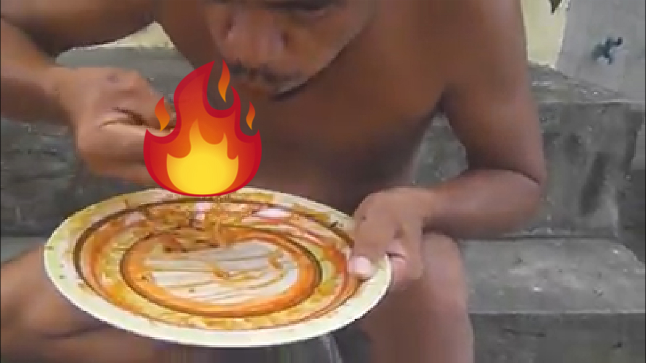 Flame ON: Pacman wannabe burns hands…