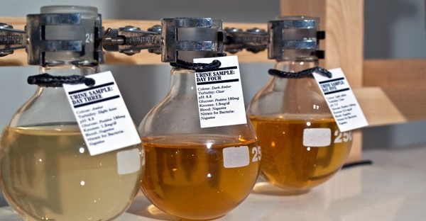 Disgusting But True: This Whisky Is Made From Human Urine